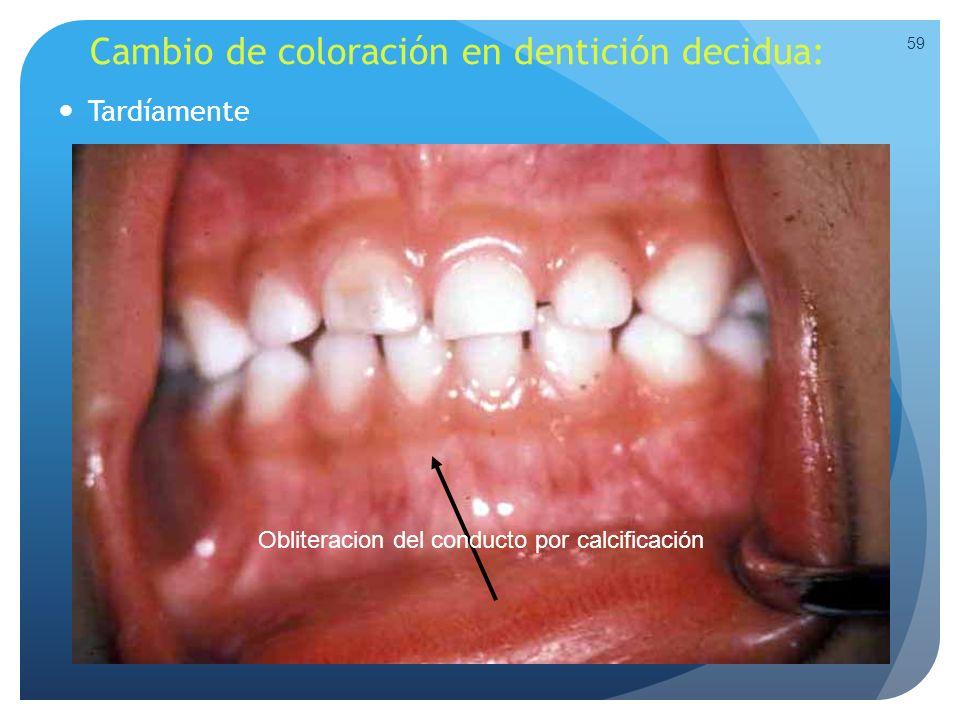 Cambio de coloración en dentición decidua: Tardíamente 59 Obliteracion del conducto por calcificación