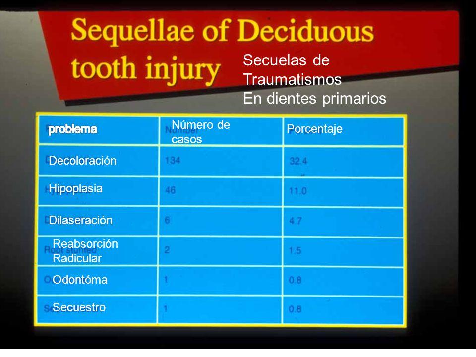 61 Decoloración Hipoplasia Dilaseración Reabsorción Radicular Odontóma Secuestro Número de casos Porcentaje Secuelas de Traumatismos En dientes primar