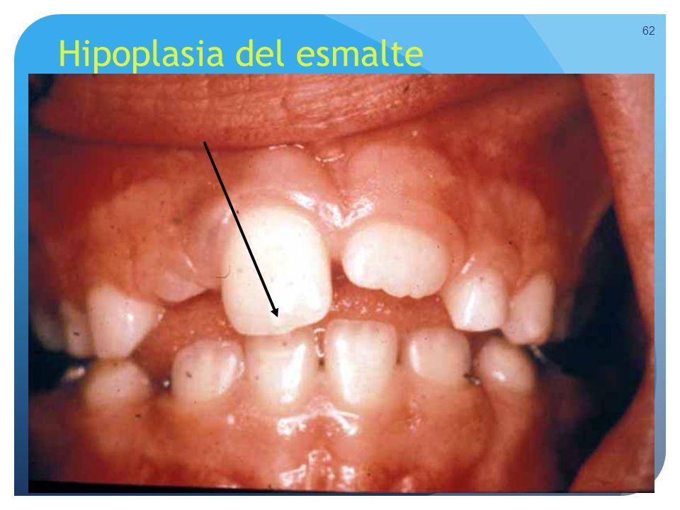 Hipoplasia del esmalte 62
