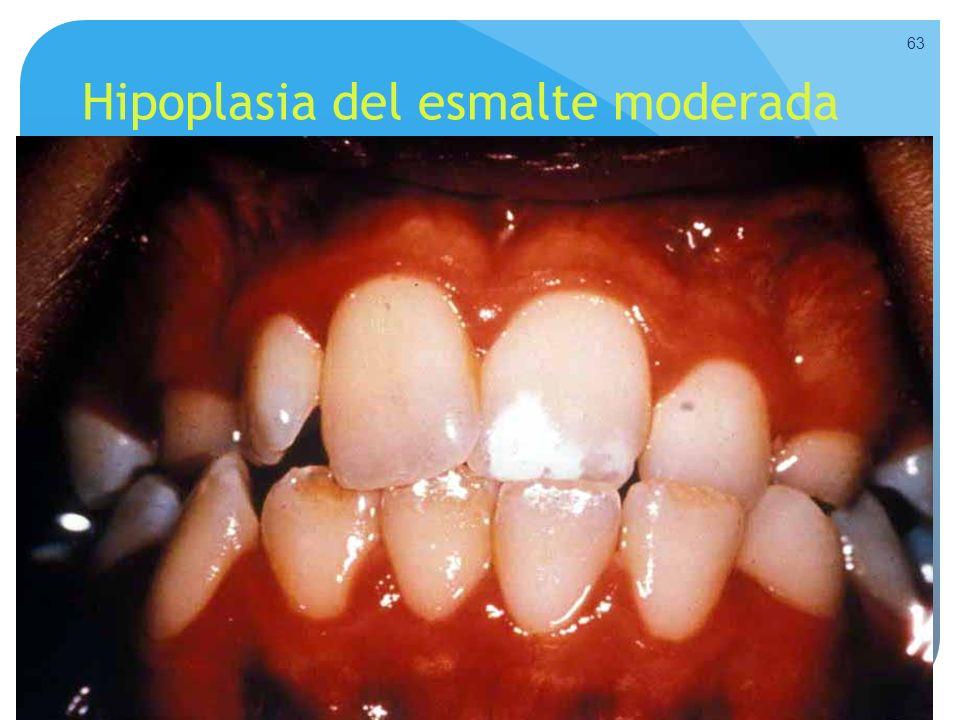 Hipoplasia del esmalte moderada 63