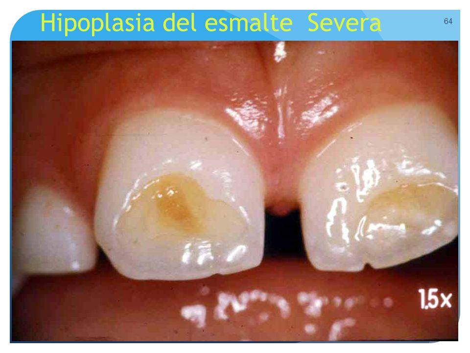 Hipoplasia del esmalte Severa 64