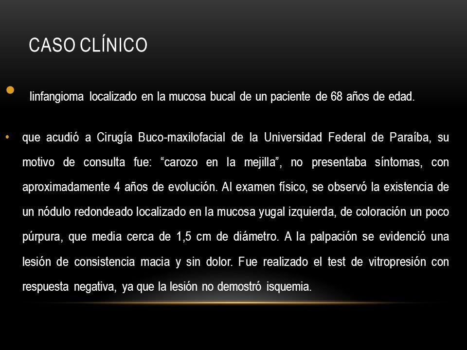 CASO CLÍNICO linfangioma localizado en la mucosa bucal de un paciente de 68 años de edad. que acudió a Cirugía Buco-maxilofacial de la Universidad Fed