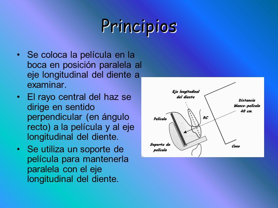 Principios Se coloca la película en la boca en posición paralela al eje longitudinal del diente a examinar. El rayo central del haz se dirige en senti