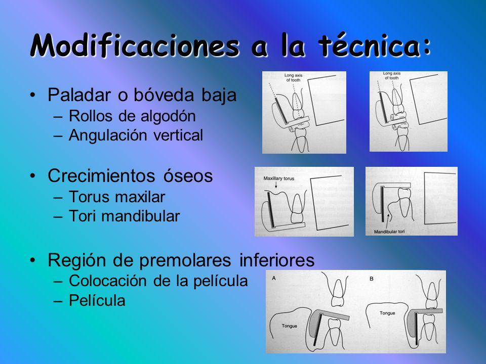 Modificaciones a la técnica: Paladar o bóveda baja –Rollos de algodón –Angulación vertical Crecimientos óseos –Torus maxilar –Tori mandibular Región d