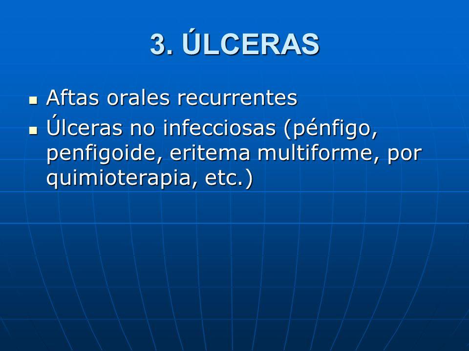 3. ÚLCERAS Aftas orales recurrentes Aftas orales recurrentes Úlceras no infecciosas (pénfigo, penfigoide, eritema multiforme, por quimioterapia, etc.)