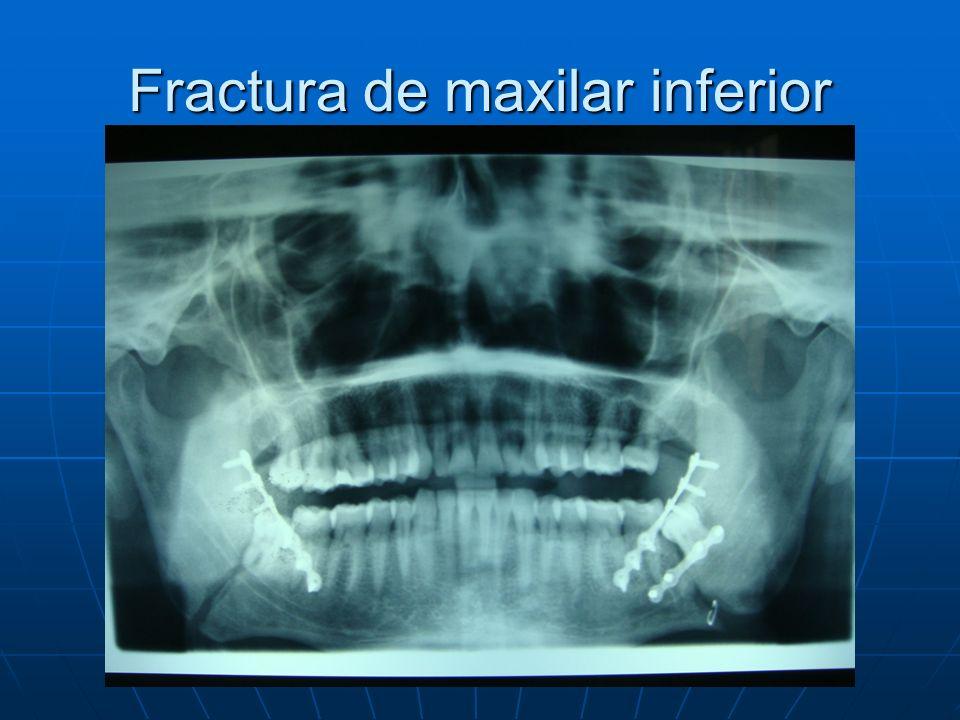 Fractura de maxilar inferior