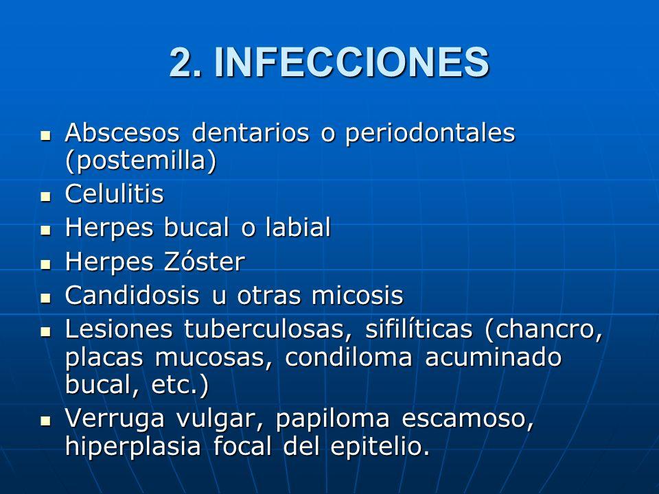 2. INFECCIONES Abscesos dentarios o periodontales (postemilla) Abscesos dentarios o periodontales (postemilla) Celulitis Celulitis Herpes bucal o labi