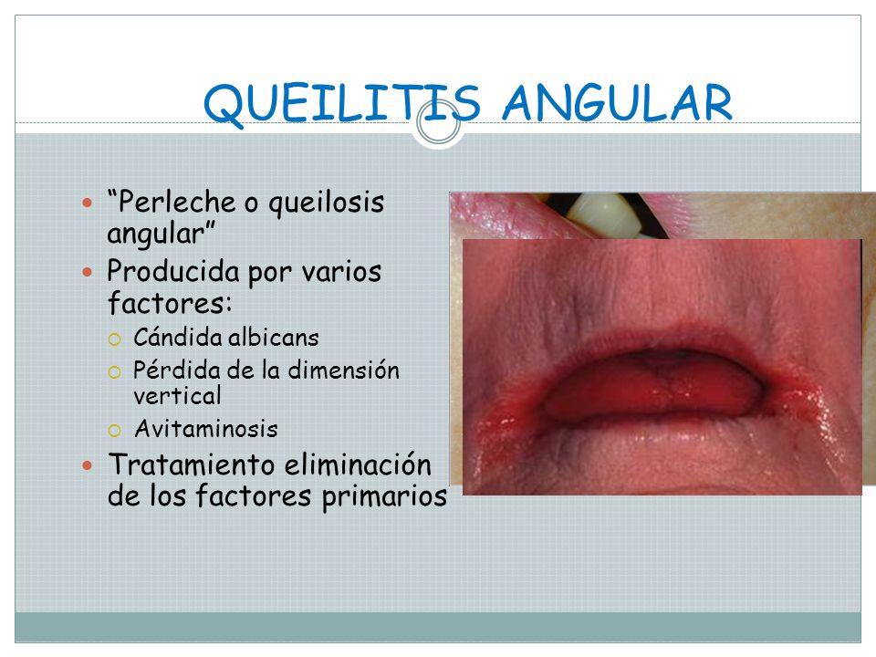 DOBLE LABIO Es una anomalía caracterizada por un pliegue excesivo de tejido en la mucosa interna del labio, puede ser congénita o adquirida como resul