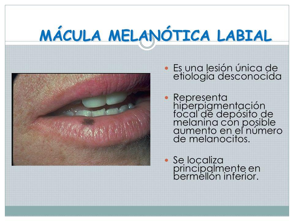 QUEILITIS ANGULAR Perleche o queilosis angular Producida por varios factores: Cándida albicans Pérdida de la dimensión vertical Avitaminosis Tratamien