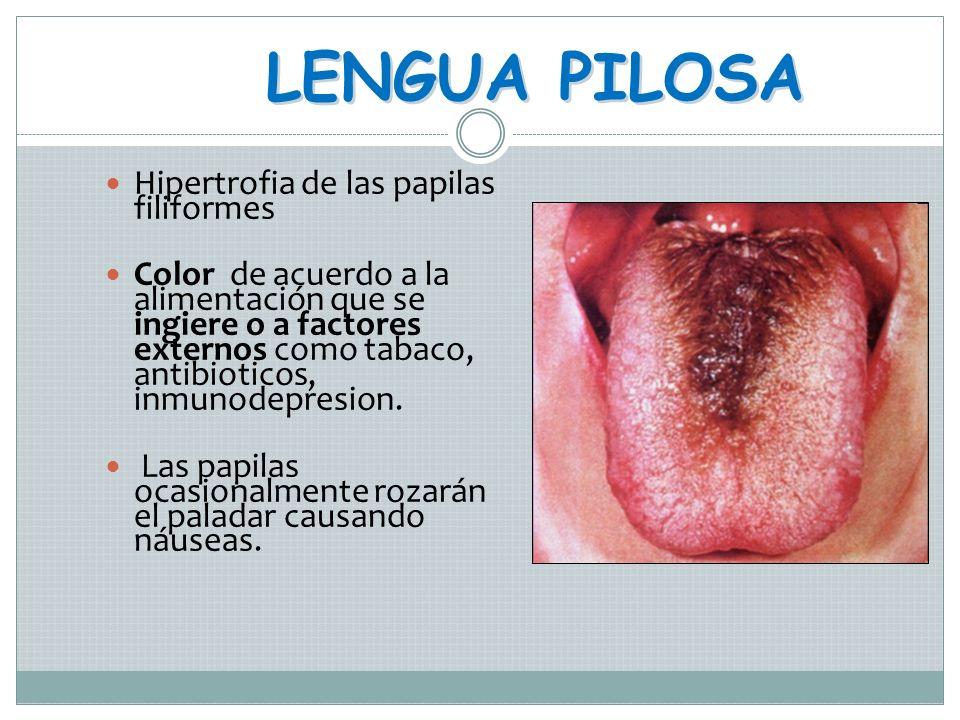 LENGUA GEOGRÁFICA Glositis migratoria benigna, glositis areata exfoliativa, eritema migrans Se asocia a estrés y hormonal Áreas de descamación de las