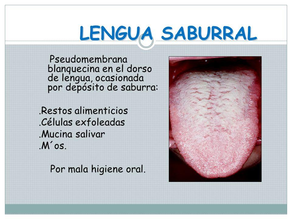 LENGUA PILOSA Hipertrofia de las papilas filiformes Color de acuerdo a la alimentación que se ingiere o a factores externos como tabaco, antibioticos,