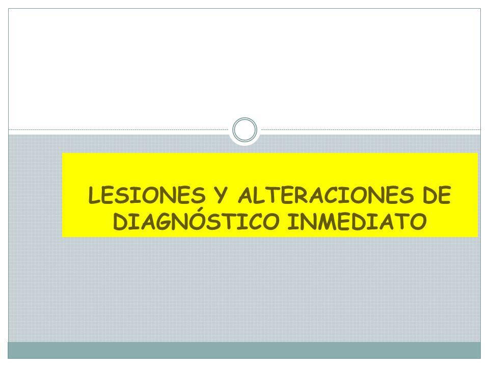 QUEILITIS ANGULAR Perleche o queilosis angular Producida por varios factores: Cándida albicans Pérdida de la dimensión vertical Avitaminosis Tratamiento eliminación de los factores primarios