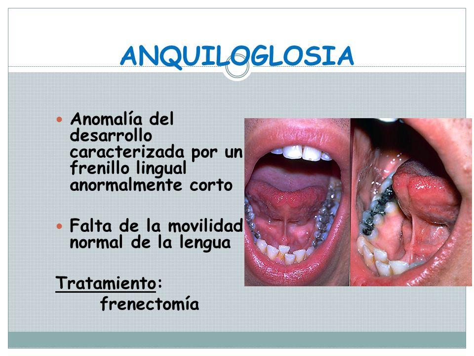 LENGUA FISURADA Foliácea, transversa o cerebriforme Es una malformación manifestada por numerosas fisuras o grietas en la superficie dorsal de lengua.