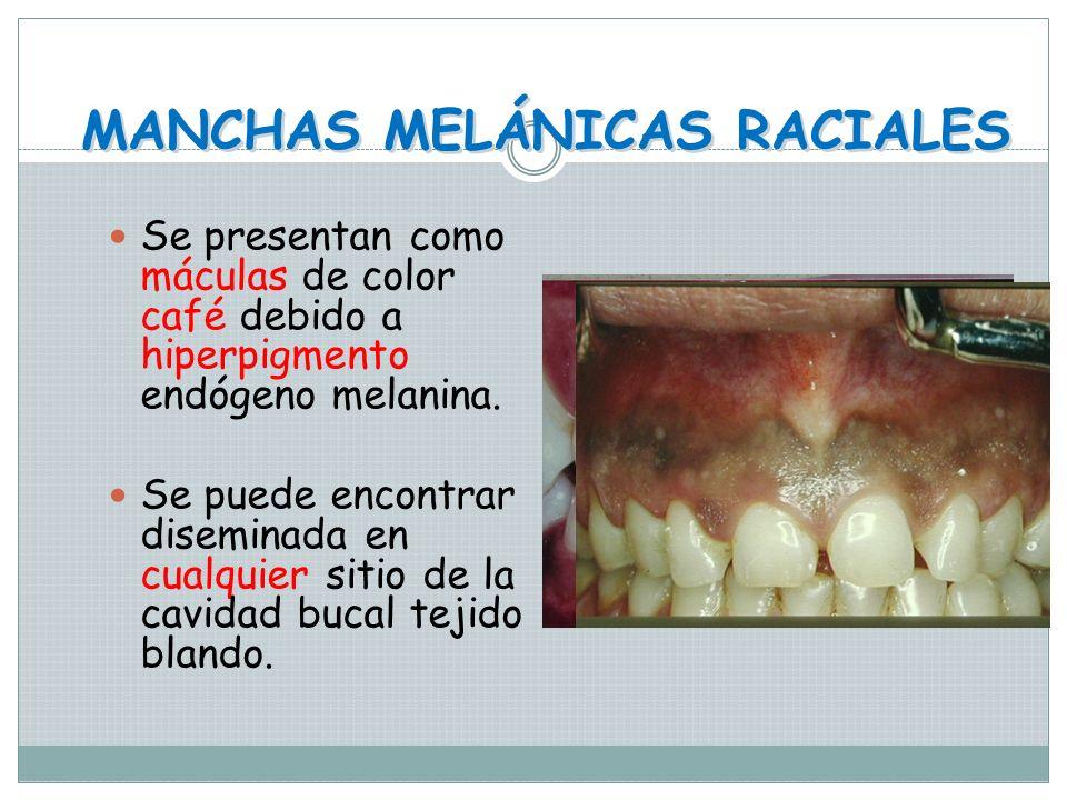 HIPERPLASIA EPITELIAL LOCALIZADA Pápula única o múltiple del mismo color de la mucosa adyacente o más pálida. Se atribuye al engrosamiento del epiteli