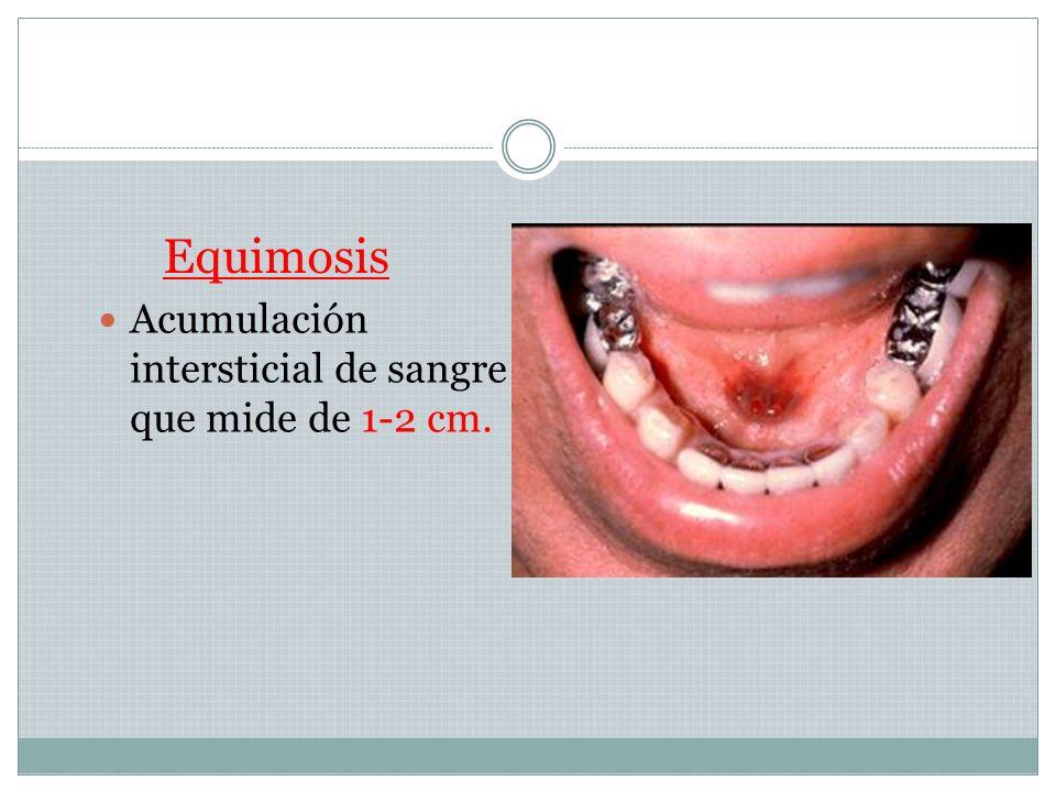 PÚRPURA: acumulación intersticial de sangre que mide entre 1mm y 1cm.