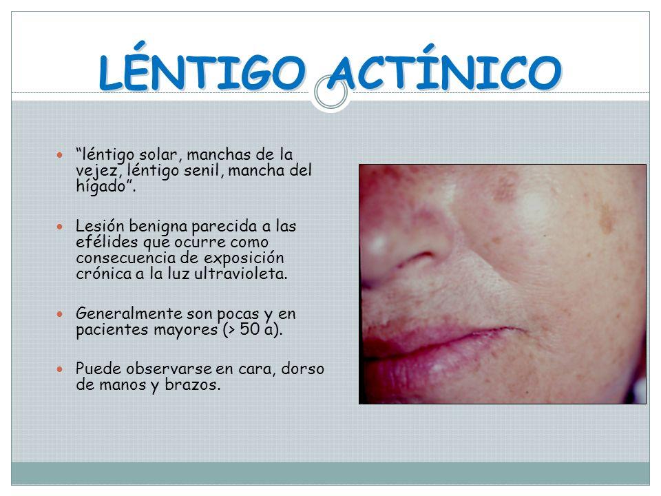 EFÉLIDES Pecas Maculas múltiple, de pigmento melánico distribuido generalmente en región nasal y geniana. Son congénitas Desaparecen algunas con la ed