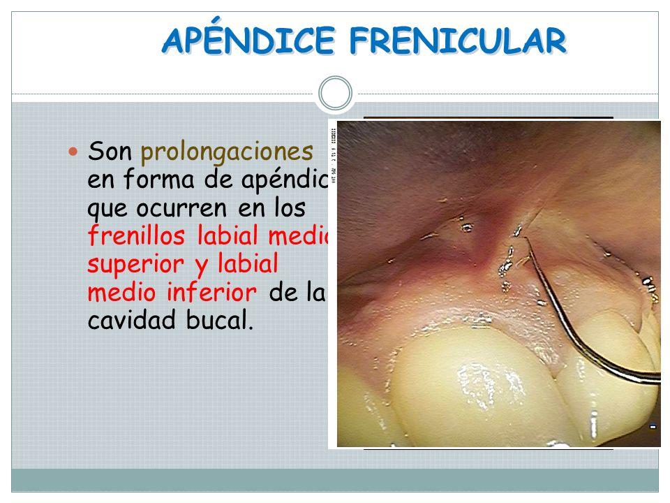 APÉNDICE CUTÁNEO Son prolongaciones del mismo tejido del sitio en donde se encuentran, son más comunes los preauriculares orejuelas como les llaman al