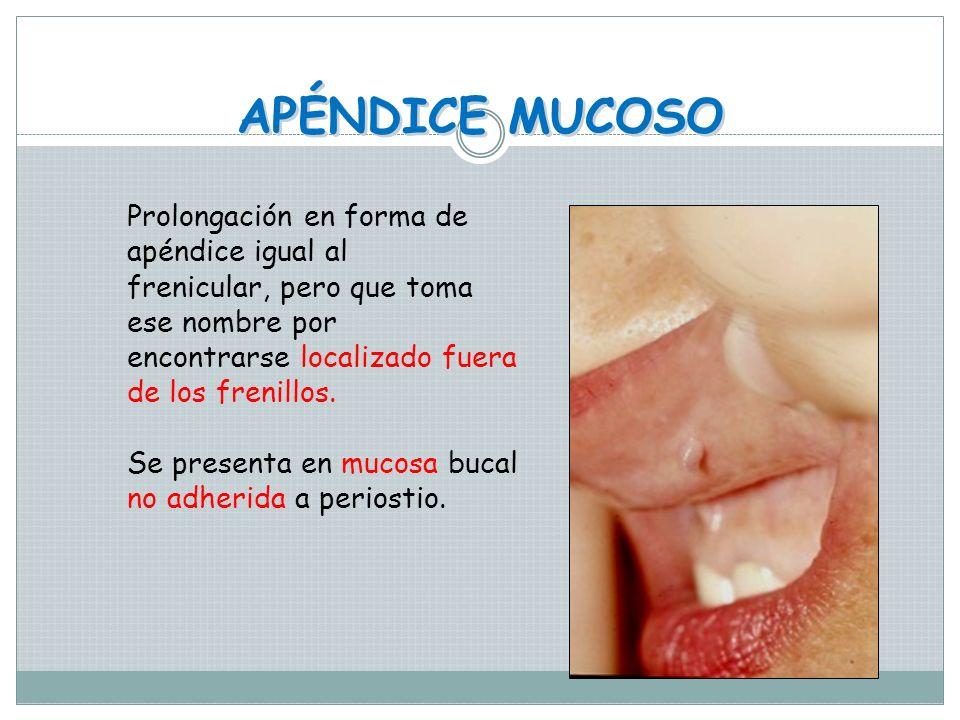 APÉNDICE FRENICULAR Son prolongaciones en forma de apéndice que ocurren en los frenillos labial medio superior y labial medio inferior de la cavidad b