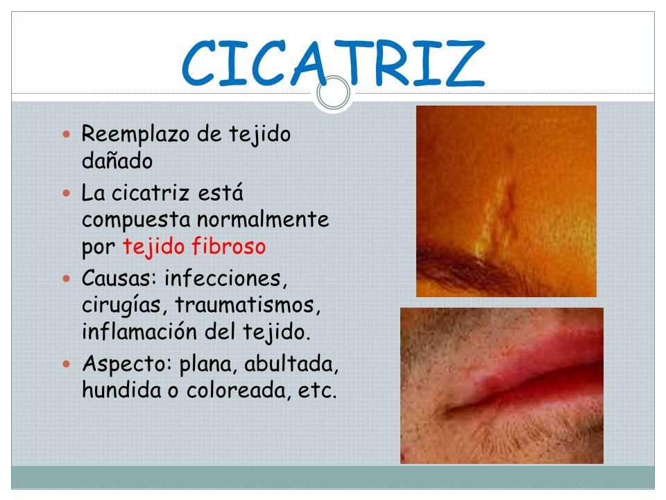 ÚLCERA TRAUMÁTICA Ulceración de piel o mucosas que ocurre subsecuente a traumatismo dejando un área dolorosa en el lugar. Generalmente sanan en un tér