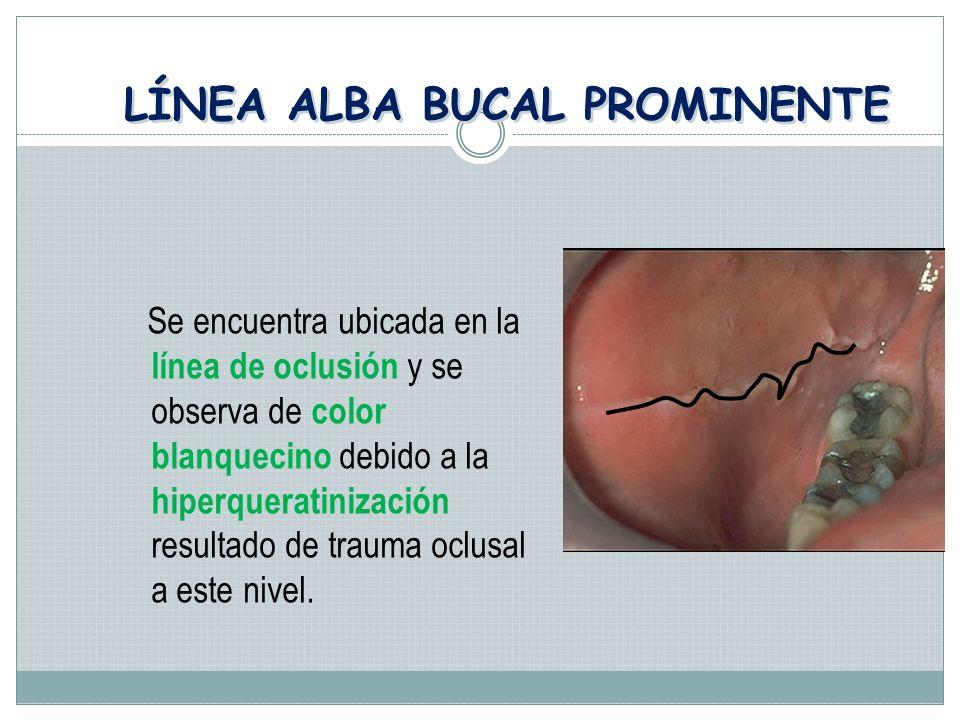 LÍNEA ALBA BUCAL PROMINENTE Se encuentra ubicada en la línea de oclusión y se observa de color blanquecino debido a la hiperqueratinización resultado de trauma oclusal a este nivel.