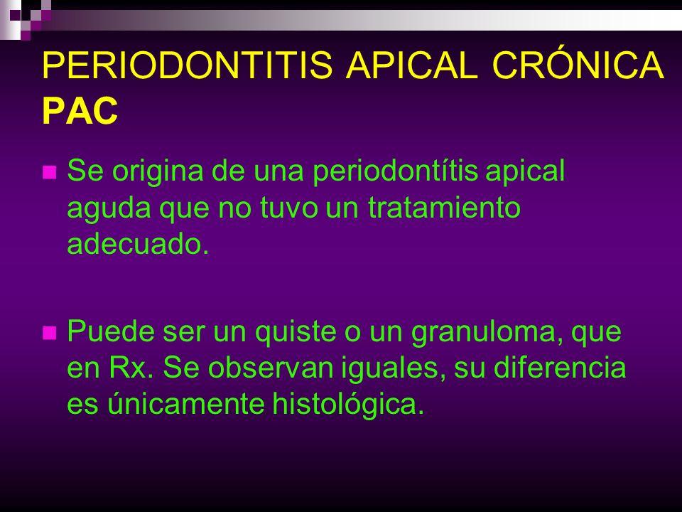 PERIODONTITIS APICAL CRÓNICA PAC Se origina de una periodontítis apical aguda que no tuvo un tratamiento adecuado. Puede ser un quiste o un granuloma,