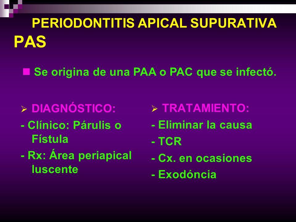 PERIODONTITIS APICAL SUPURATIVA PAS DIAGNÓSTICO: - Clínico: Párulis o Fístula - Rx: Área periapical luscente TRATAMIENTO: - Eliminar la causa - TCR -