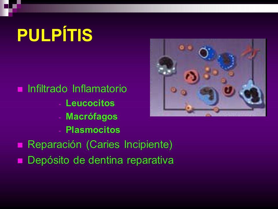 PULPÍTIS Infiltrado Inflamatorio - Leucocitos - Macrófagos - Plasmocitos Reparación (Caries Incipiente) Depósito de dentina reparativa