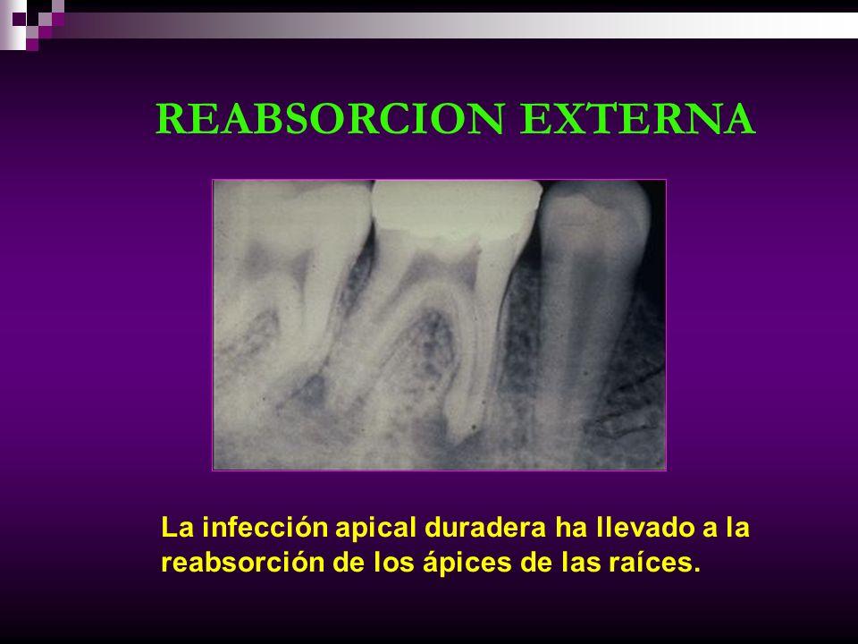 La infección apical duradera ha llevado a la reabsorción de los ápices de las raíces. REABSORCION EXTERNA
