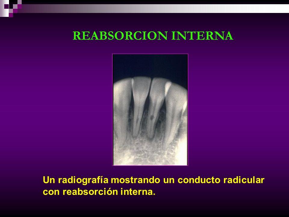 Un radiografía mostrando un conducto radicular con reabsorción interna. REABSORCION INTERNA