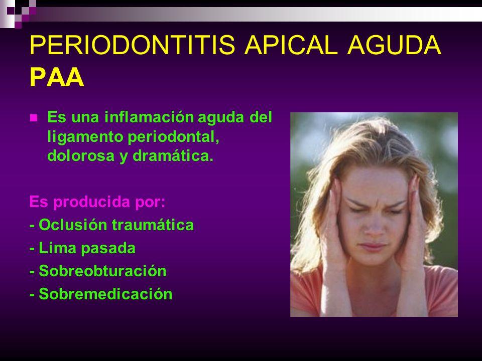 PERIODONTITIS APICAL AGUDA PAA Es una inflamación aguda del ligamento periodontal, dolorosa y dramática. Es producida por: - Oclusión traumática - Lim