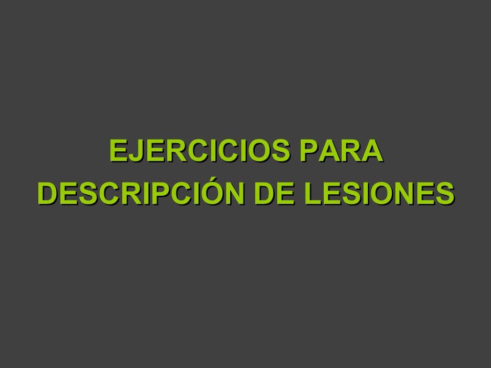 EJERCICIOS PARA DESCRIPCIÓN DE LESIONES EJERCICIOS PARA DESCRIPCIÓN DE LESIONES