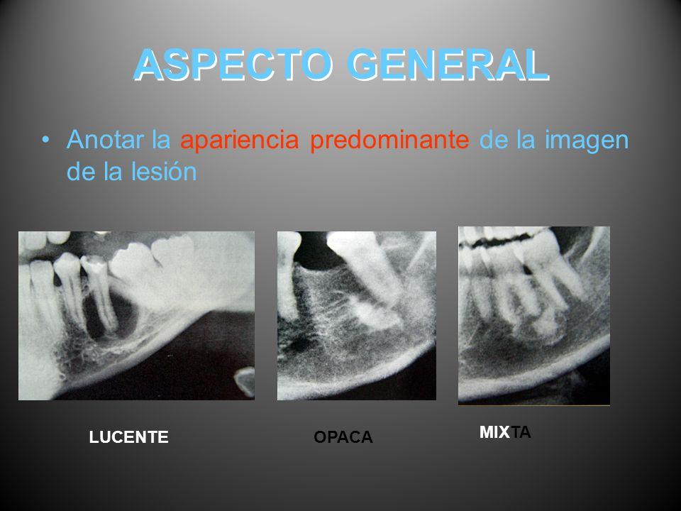 ASPECTO GENERAL Anotar la apariencia predominante de la imagen de la lesión LUCENTEOPACA MIXTA