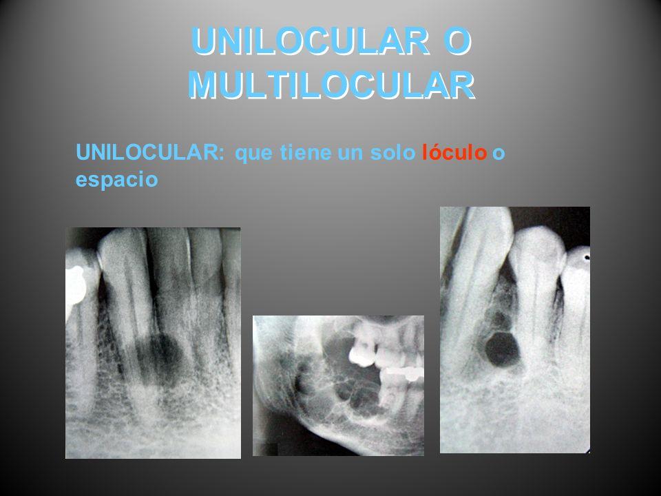 UNILOCULAR O MULTILOCULAR UNILOCULAR: que tiene un solo lóculo o espacio