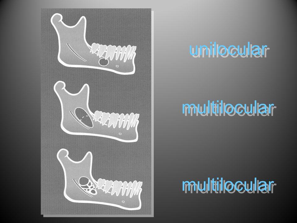 unilocular multilocular