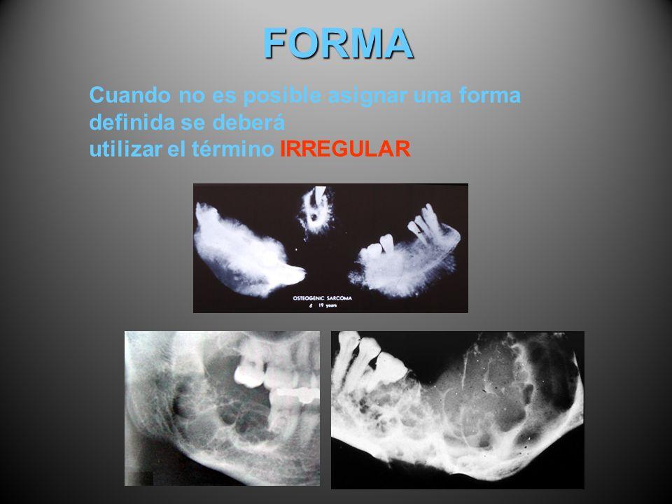 FORMA Cuando no es posible asignar una forma definida se deberá utilizar el término IRREGULAR