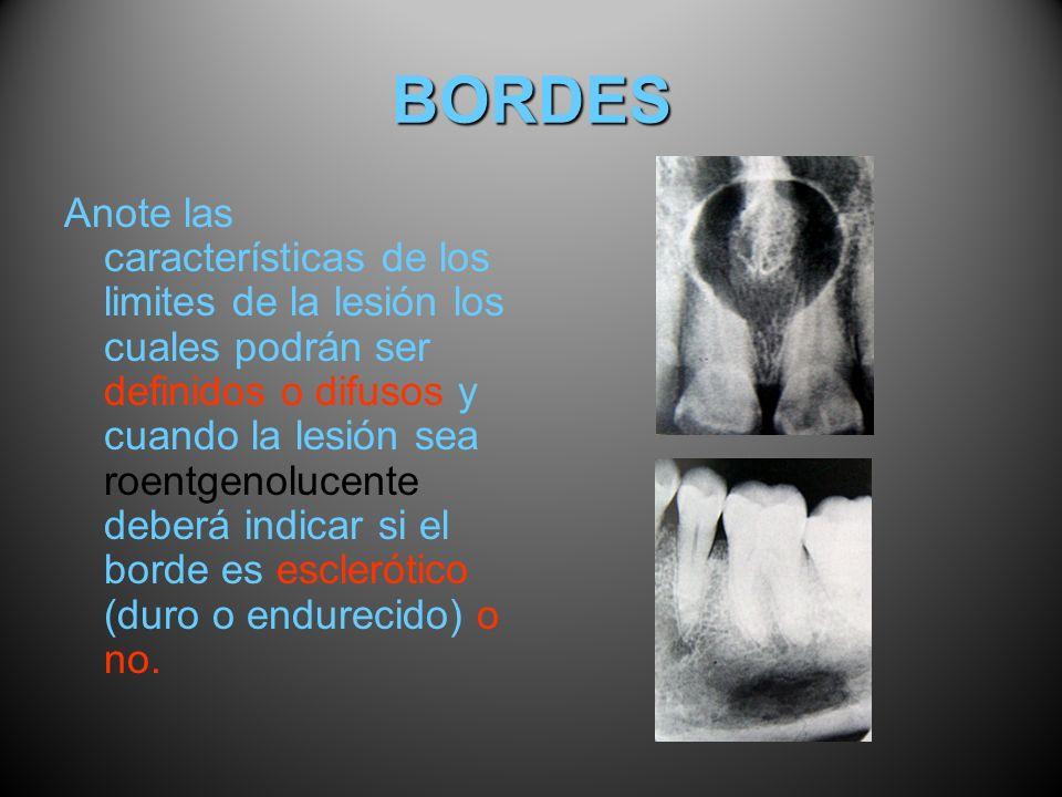 BORDES Anote las características de los limites de la lesión los cuales podrán ser definidos o difusos y cuando la lesión sea roentgenolucente deberá