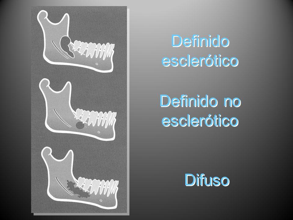 Definido no esclerótico Definido esclerótico Difuso