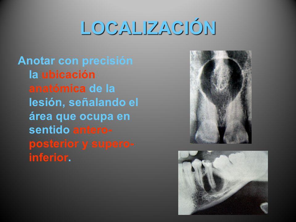 LOCALIZACIÓN Anotar con precisión la ubicación anatómica de la lesión, señalando el área que ocupa en sentido antero- posterior y supero- inferior.