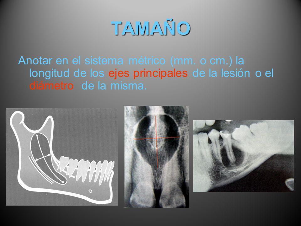 TAMAÑO Anotar en el sistema métrico (mm. o cm.) la longitud de los ejes principales de la lesión o el diámetro de la misma.