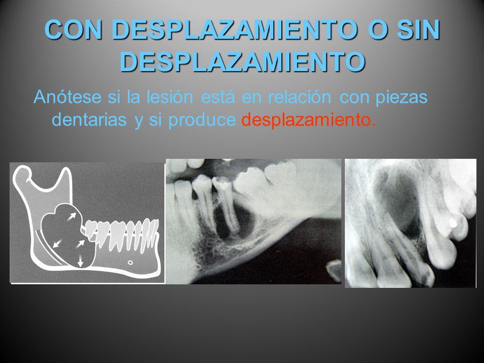 CON DESPLAZAMIENTO O SIN DESPLAZAMIENTO Anótese si la lesión está en relación con piezas dentarias y si produce desplazamiento.