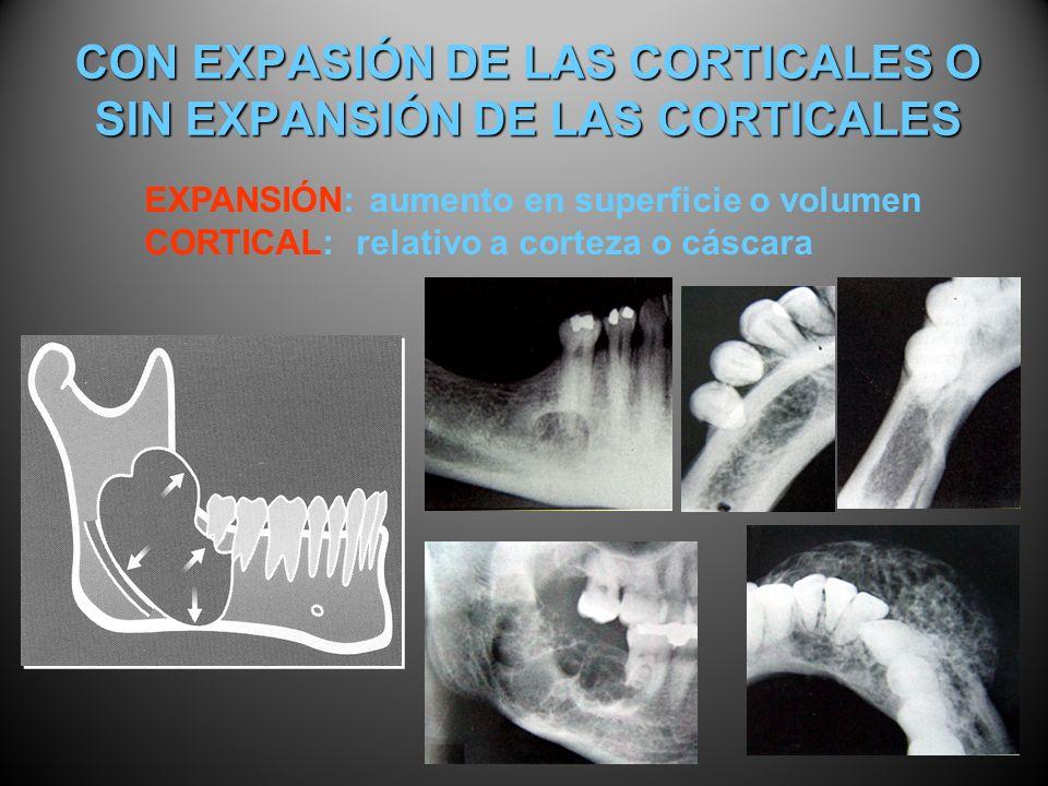 CON EXPASIÓN DE LAS CORTICALES O SIN EXPANSIÓN DE LAS CORTICALES EXPANSIÓN: aumento en superficie o volumen CORTICAL: relativo a corteza o cáscara