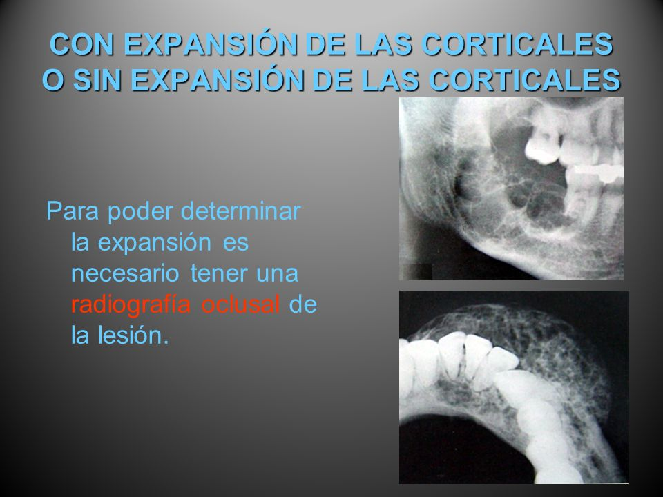 CON EXPANSIÓN DE LAS CORTICALES O SIN EXPANSIÓN DE LAS CORTICALES Para poder determinar la expansión es necesario tener una radiografía oclusal de la