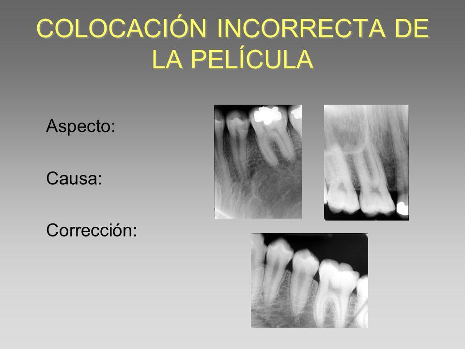 EXCLUSIÓN DE ESTRUCTURAS APICALES Ó CORONALES Aspecto: Causa: Corrección: