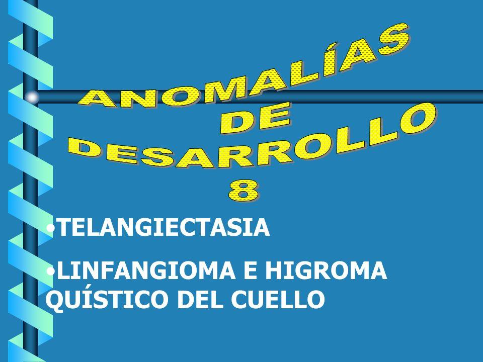 TELANGIECTASIA LINFANGIOMA E HIGROMA QUÍSTICO DEL CUELLO