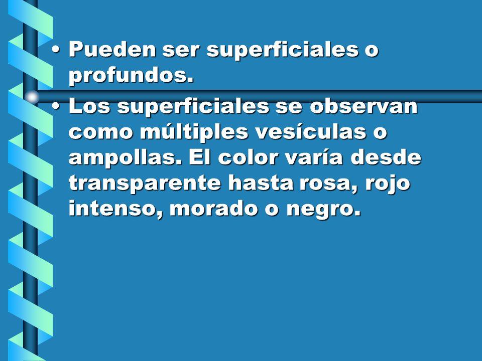 CARACTERÍSTICAS CLÍNICAS Ocurre con frecuencia en membranas mucosas de lengua y carrillos, Ocurre con frecuencia en membranas mucosas de lengua y carr