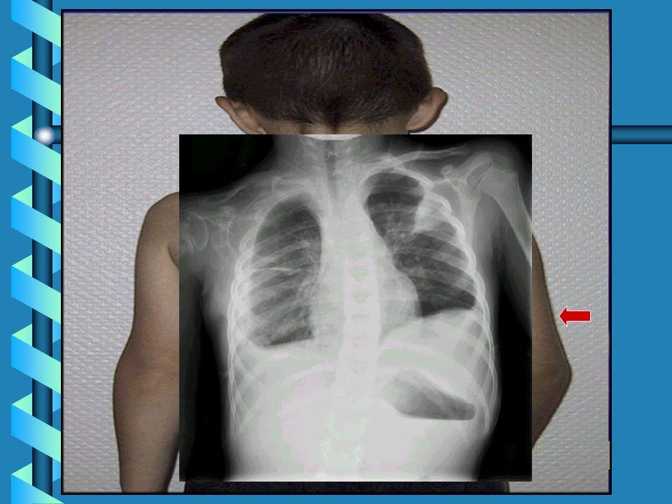 Algunos linfangiomas pueden aumentar de tamaño cuando hay infecciones respiratorias superiores.Algunos linfangiomas pueden aumentar de tamaño cuando h