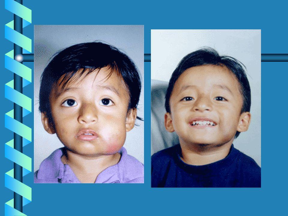 Tratamiento con OK-432, droga derivada de la toxina del estreptococo piógenes, combinado con penicilina. Aplicarlo 3 a 4 meses después del nacimiento(