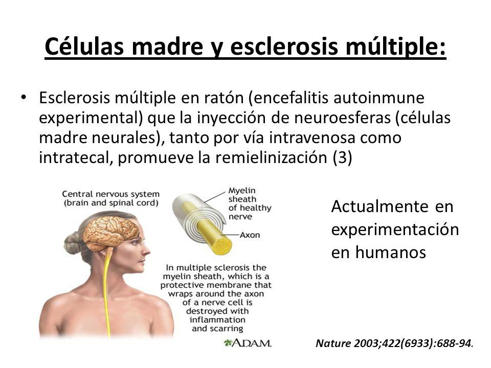 Células madre y esclerosis múltiple: Esclerosis múltiple en ratón (encefalitis autoinmune experimental) que la inyección de neuroesferas (células madr