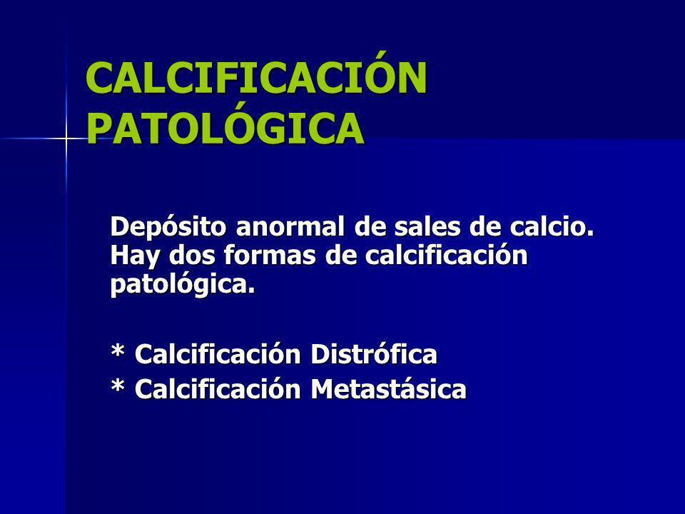CALCIFICACIÓN PATOLÓGICA Depósito anormal de sales de calcio. Hay dos formas de calcificación patológica. * Calcificación Distrófica * Calcificación M