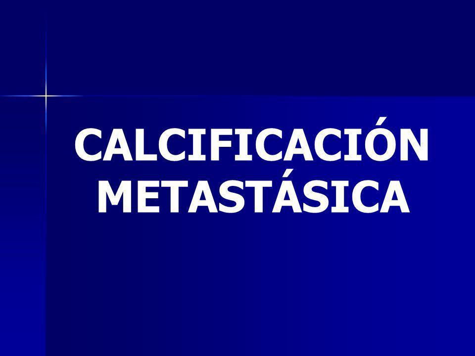 CALCIFICACIÓN METASTÁSICA